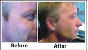 Anti aging for mens skin