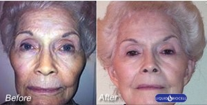 Find out how to get younger looking skin