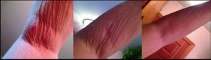 tighten skin